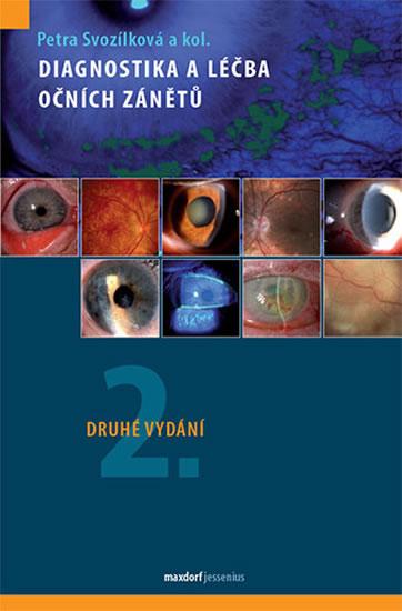 Diagnostika a léčba očních zánětů - Svozílková Petra a kolektiv