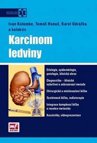 Karcinom ledviny