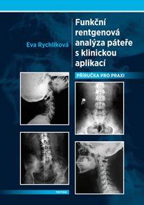 Funkční rentgenová analýza páteře s klinickou aplikací